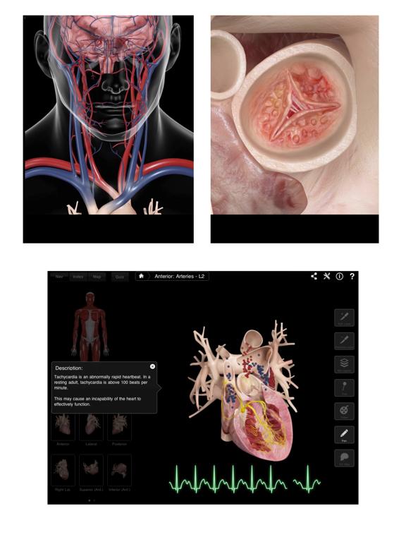 Heart Pro III Screenshot 2