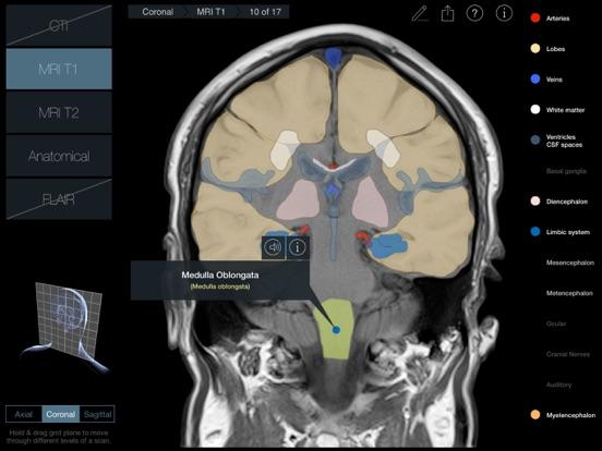 Radiology - Headのおすすめ画像4