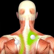 肌肉激痛点:指南和参考