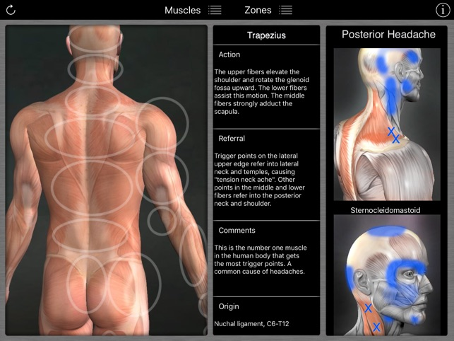 muscle trigger points on the app store