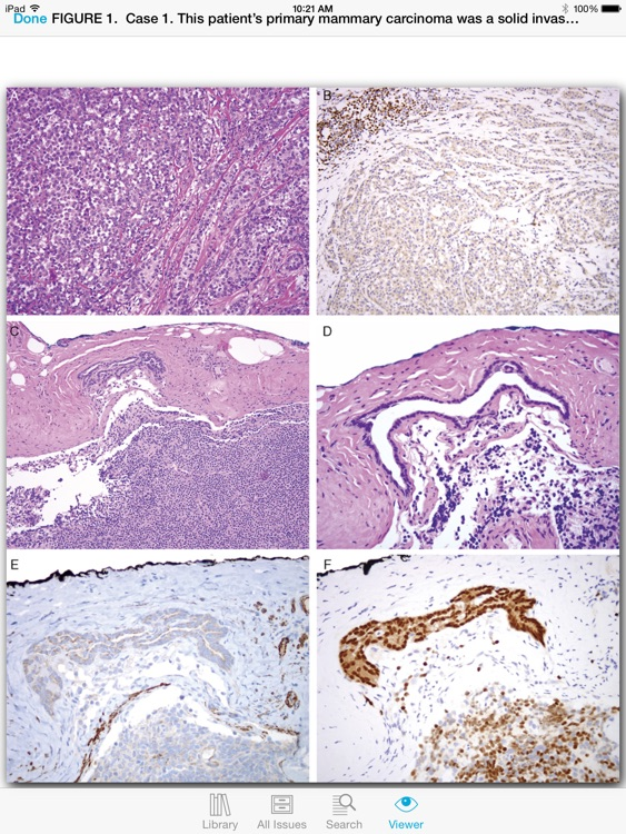 The American Journal of Surgical Pathology screenshot-4