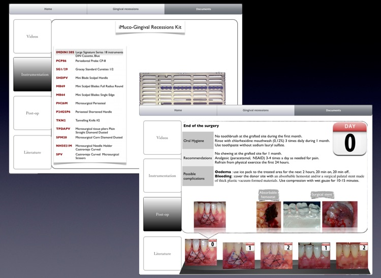 iMuco Gingival recessions screenshot-4
