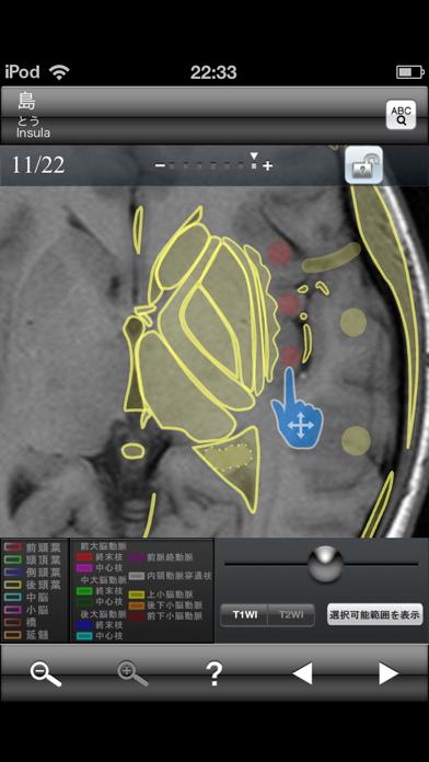 断面図ウォーカー脳MRIのおすすめ画像4