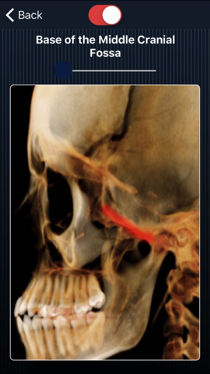 Dental Panoramic Radiology screenshot-3