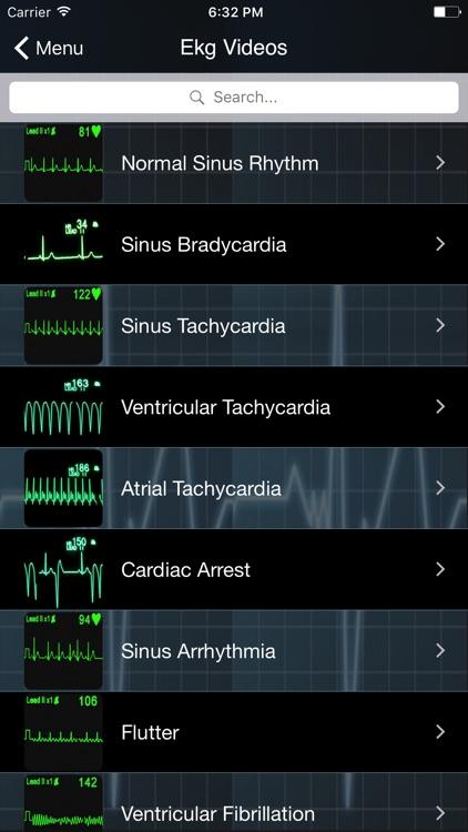 EKG Clinical screenshot-3