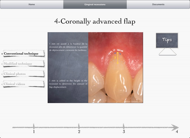 iMuco Gingival recessions screenshot-1