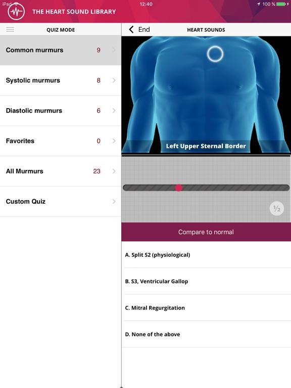 Heart Murmurs Proのおすすめ画像2