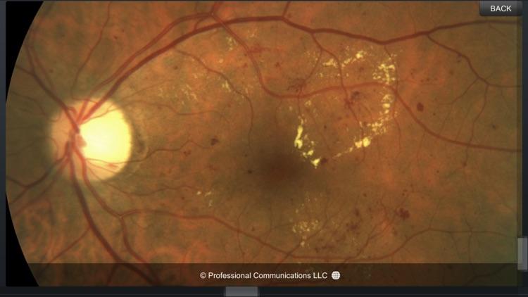 Eye Anatomy screenshot-4