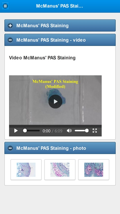Stainings in Medical Mycology