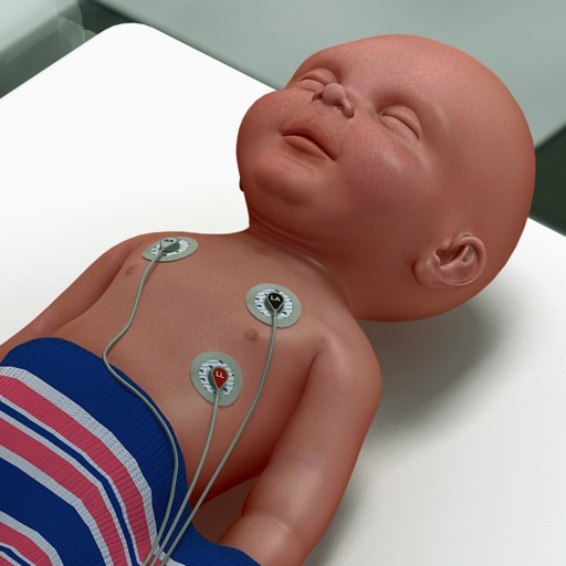 Infant Endotracheal Intubation