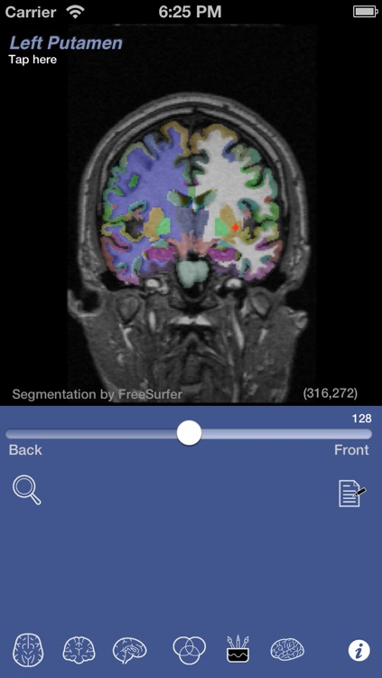 iSurf BrainView screenshot-4