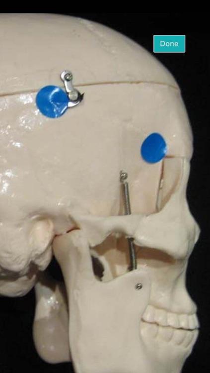 Craniotomy screenshot-4