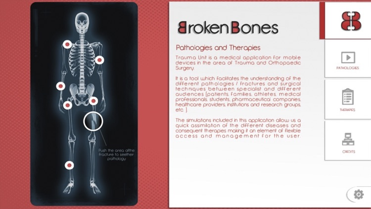 Broken Bones screenshot-1