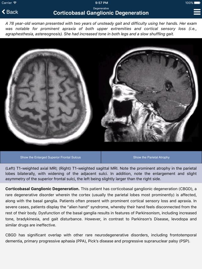 Nina Neuroimaging in Neurology on the App Store