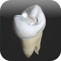 CavSim :  3D Dental Restorative Tooth Cavity Preparation