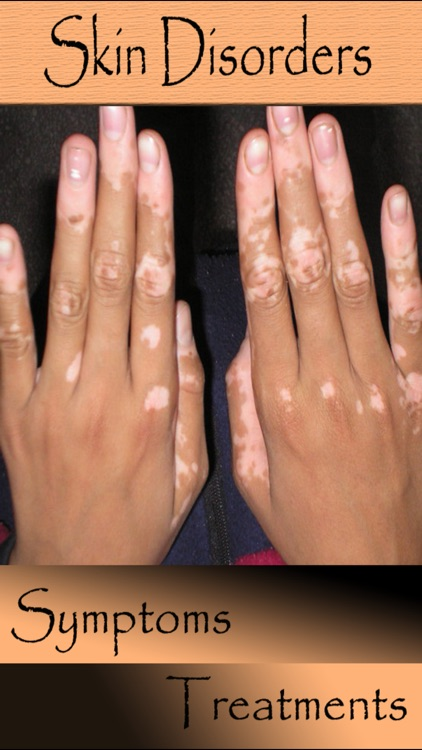 Most Skin Disorders