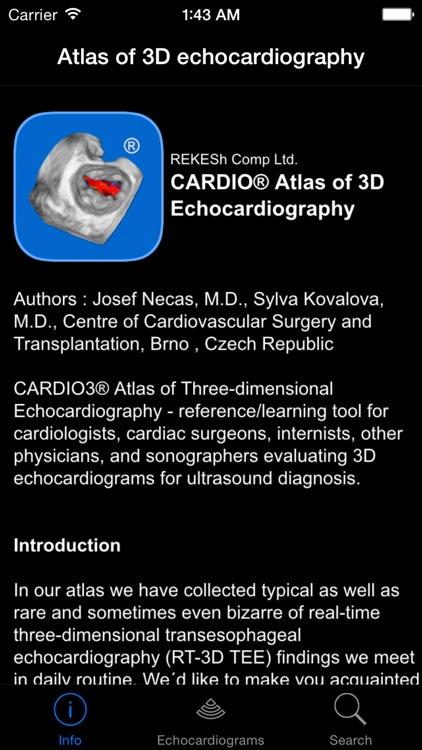 CARDIO3® Atlas of 3D Echocardiography