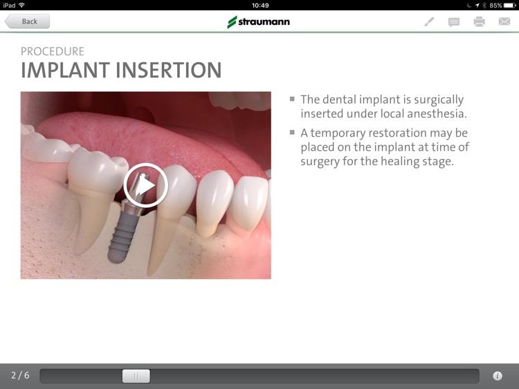 Straumann® Patient Education App