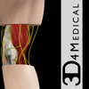 Elbow Pro III - 3D4Medical.com, LLC