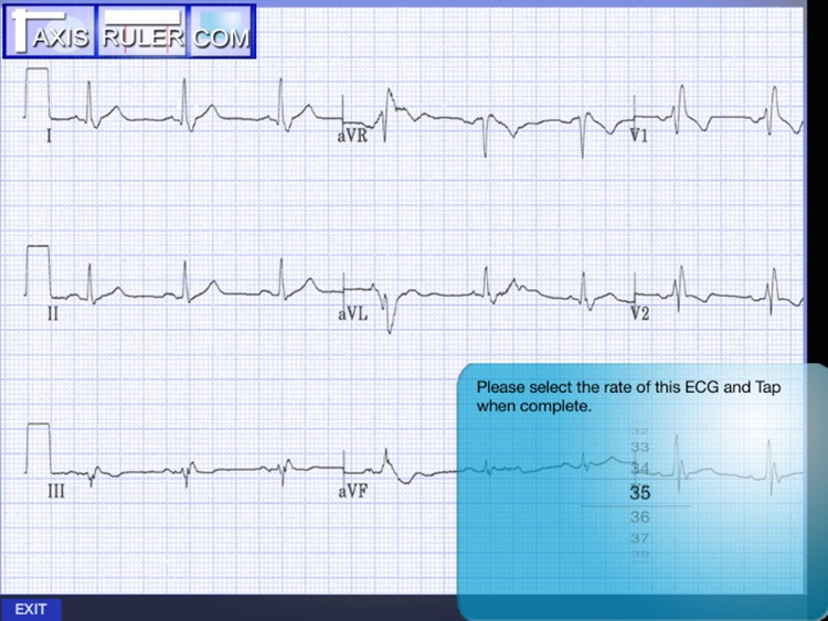 ECG Genius screenshot-2