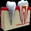 Simple Odontogram - Fernando Rodrigues