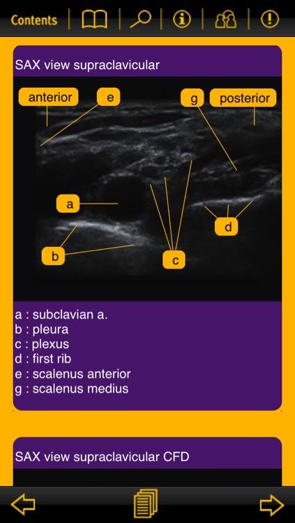 Nerve Blocks screenshot-4