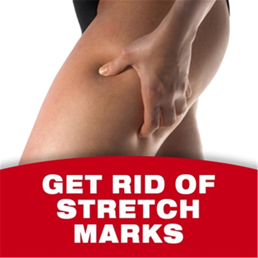 Stretch Marks 101:Essential Oils Healing,Natural Remedies and Prevention,health icon