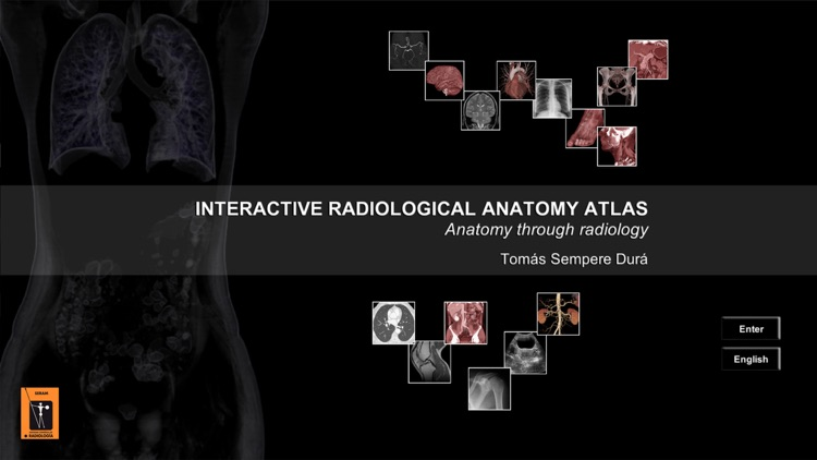 Interactive radiological anatomy atlas by Skadi