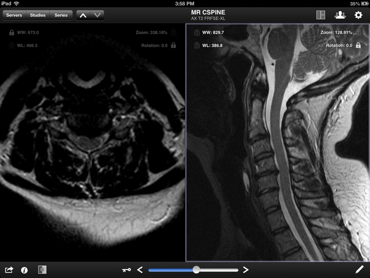 Jack Imaging Medical Image Viewer screenshot-3