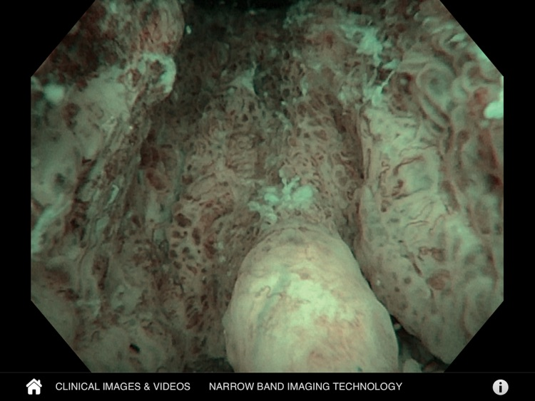 Urology NBI Atlas by Olympus
