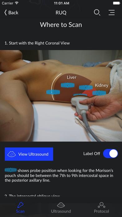 RESUS Ultrasoundのおすすめ画像2