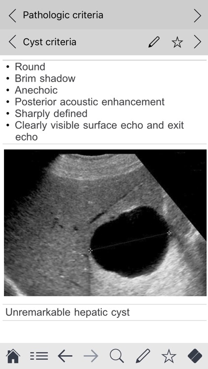 Abdominal ultrasound pocketcards screenshot-4