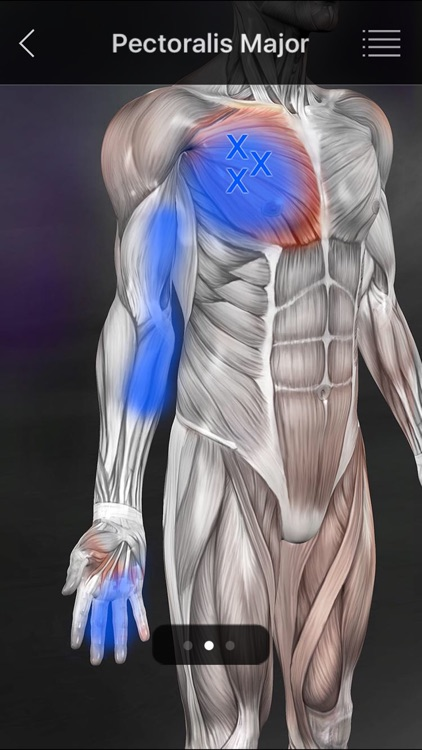 Muscle Trigger Points screenshot-3