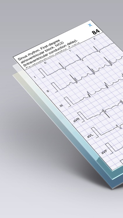ECG Books - Cardiology Textbooks and Examples screenshot-3