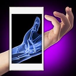 Xray Fracture Hand Prank