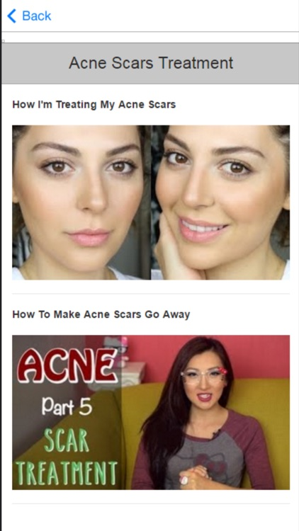 Acne Treatment - Learn How to Treat Acne Fast and Naturally screenshot-3