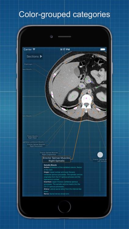 X-Anatomy Free screenshot-4