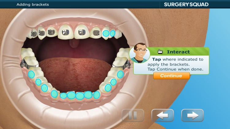 Virtual Braces screenshot-4
