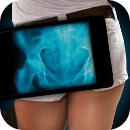 Simulator X-Ray Photo Hip Bone