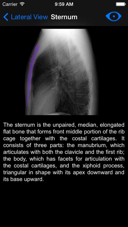 Chest X-ray screenshot-4
