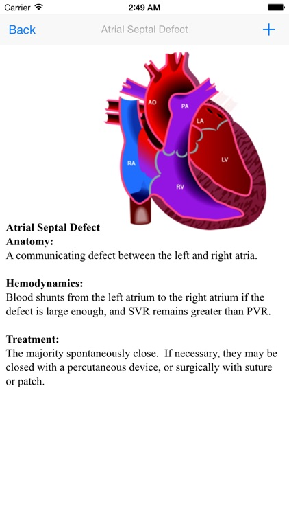 Congenital Heart Defect
