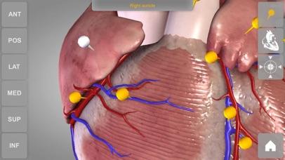心臓解剖 Heart 3D Atlas of Anatomyのおすすめ画像3