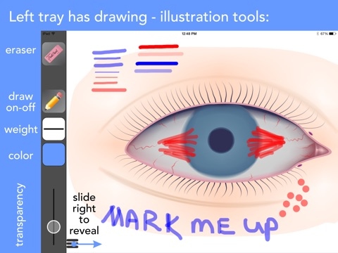 Ophthalmic Media Library Screenshots