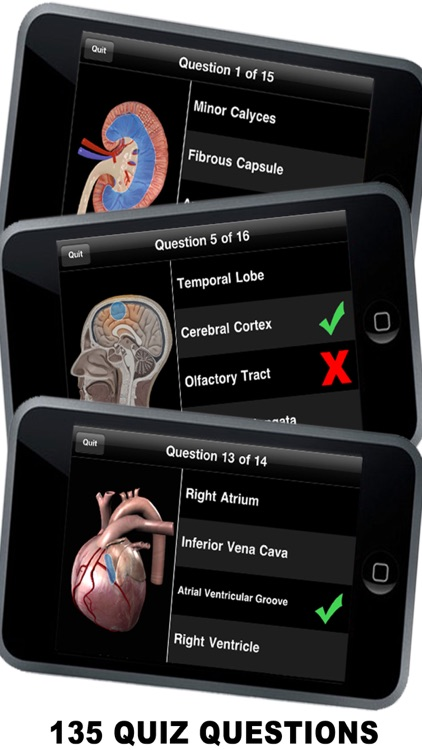 Anatomy 3D - Organs screenshot-2