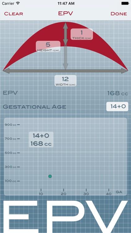 EPV screenshot-2