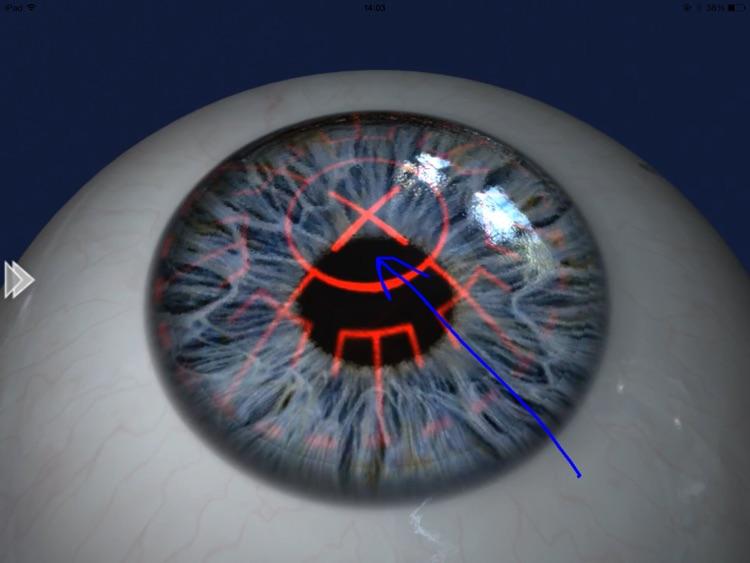 EyeDraw