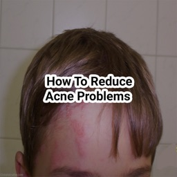 How to reduce acne problems