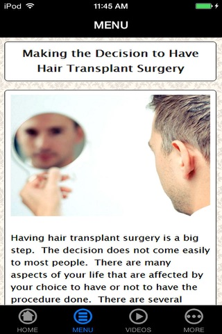 Best Hair Transplant Pre-Procedure, Preparation and Process Guide & Tips Made Easy for Beginners screenshot 2