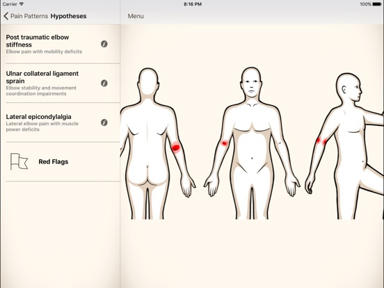 Clinical Pattern Recognition: Elbow Pain Screenshots