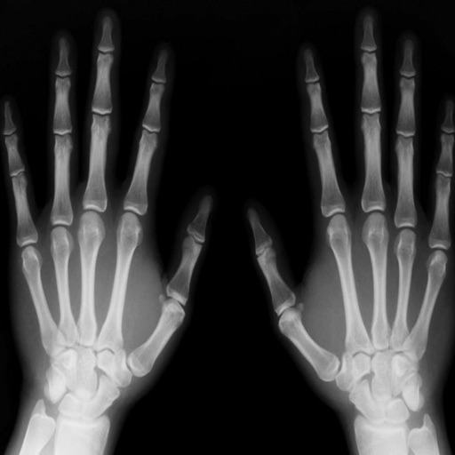 Radiography Glossary and Flashcard,Study Guide